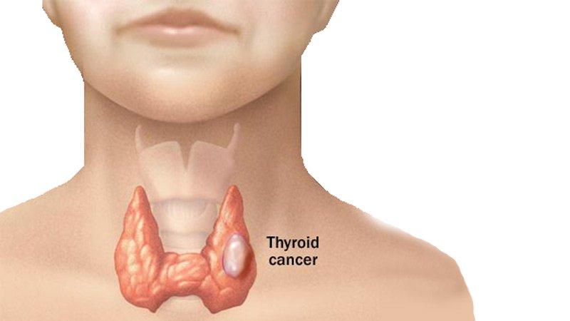 Chế độ ăn cho người bệnh ung thư tuyến giáp.